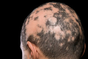 hair loss during chemotheraphy