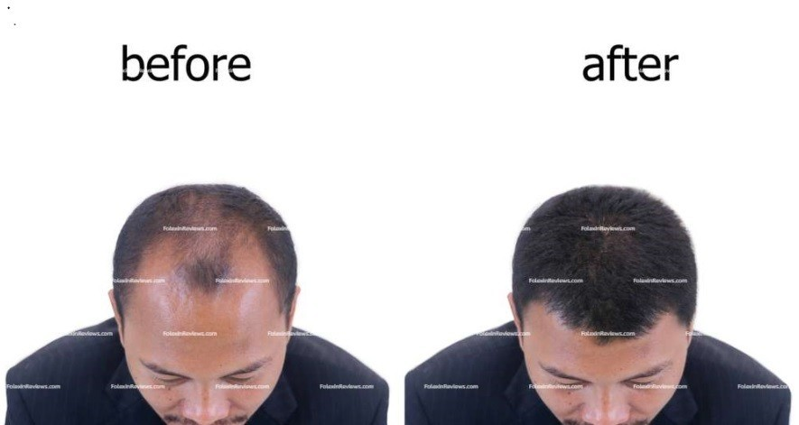Folexin Before and After Results